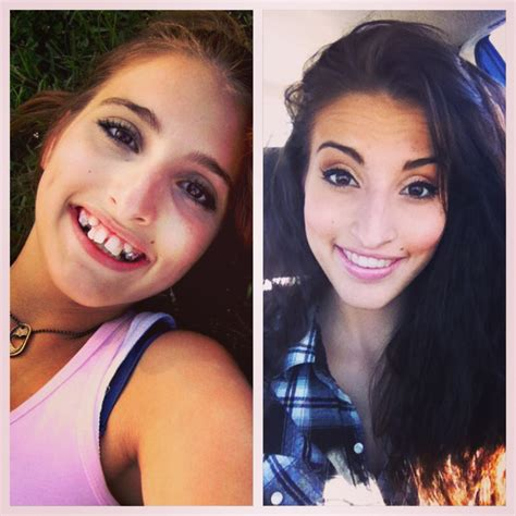 Girl's Incredible Before-And-After Tranformation After Jaw
