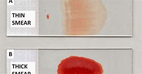 Haematology in a NutShell: Thick and Thin Smears for