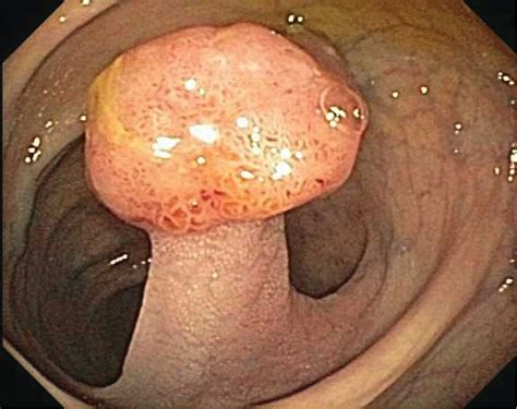 Colorectal Cancer Screening and Surveillance - - American