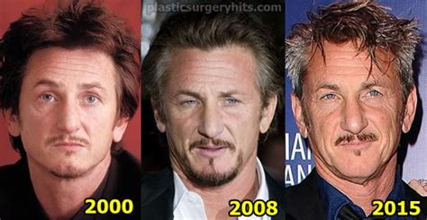 Celebs Who Are Aging Terribly – NewsFig - Page 19
