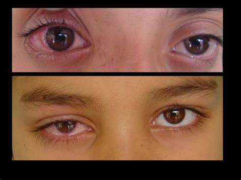 Common ophthalmic disorders