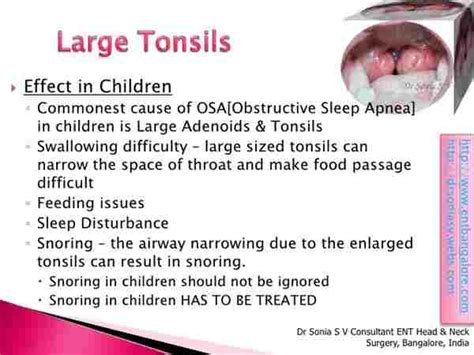 Large Tonsils In Child Where Space Tonsils Wer