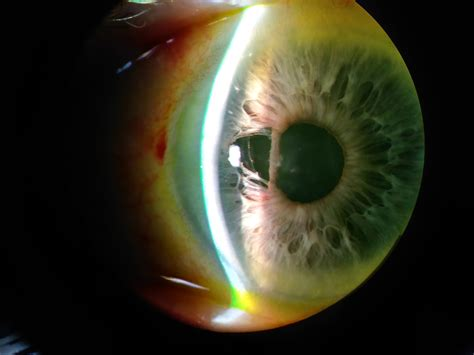 Floppy Iris Syndrome - American Academy of Ophthalmology